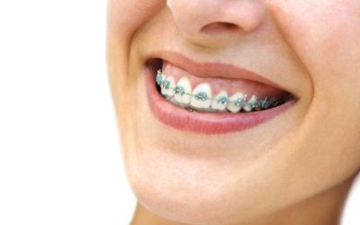 Common questions about braces | Iowa Park Dental