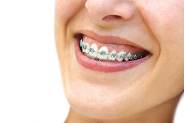 Common questions about braces | Iowa Park Dental